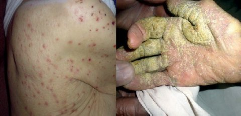 Scabies presentations from our UK care home study (Cassell et al, Lancet Infectious Diseases, 2018)